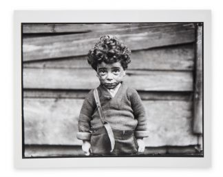 Lewis Wickes Hine (1874-1940), Tenement Child, Handicapped in Every Way, Chicago, 1910, copy print 1970s/1980s.